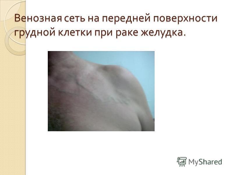 Венозная сеть на передней поверхности грудной клетки при раке желудка.