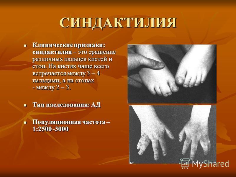 СИНДАКТИЛИЯ Клинические признаки: синдактилия – это сращение различных пальцев кистей и стоп. На кистях чаще всего встречается между 3 – 4 пальцами, а на стопах - между 2 – 3. Клинические признаки: синдактилия – это сращение различных пальцев кистей