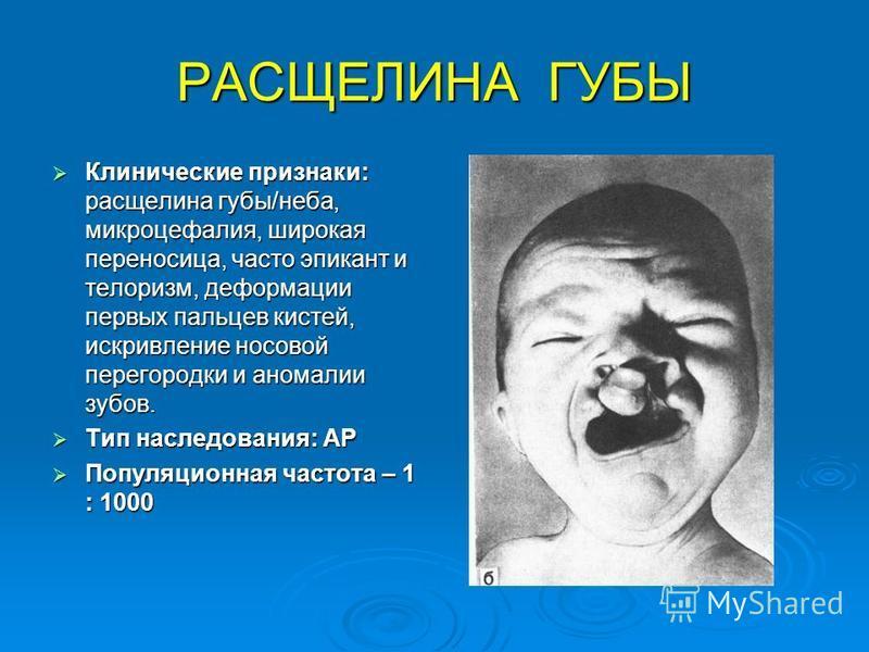 РАСЩЕЛИНА ГУБЫ Клинические признаки: расщелина губы/неба, микроцефалия, широкая переносица, часто эпикант и телоризм, деформации первых пальцев кистей, искривление носовой перегородки и аномалии зубов. Клинические признаки: расщелина губы/неба, микро