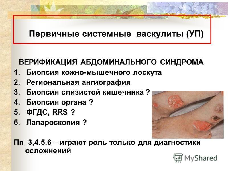 Первичные системные васкулиты (УП) ВЕРИФИКАЦИЯ АБДОМИНАЛЬНОГО СИНДРОМА 1. Биопсия кожно-мышечного лоскута 2. Региональная ангиография 3. Биопсия слизистой кишечника ? 4. Биопсия органа ? 5. ФГДС, RRS ? 6. Лапароскопия ? Пп 3,4.5,6 – играют роль тольк