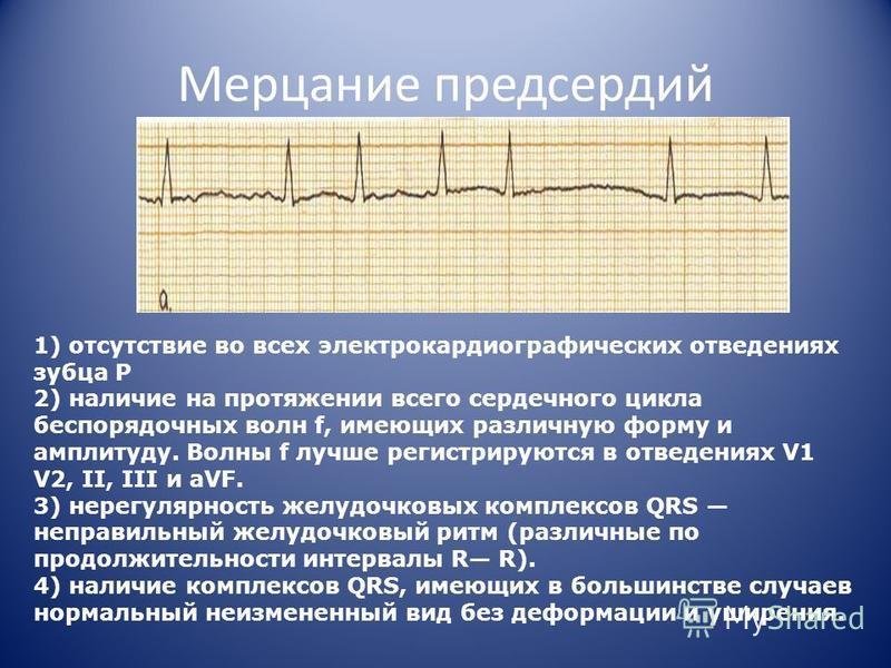 Мерцание предсердий 1) отсутствие во всех электрокардиографических отведениях зубца P 2) наличие на протяжении всего сердечного цикла беспорядочных волн f, имеющих различную форму и амплитуду. Волны f лучше регистрируются в отведениях V1 V2, II, III