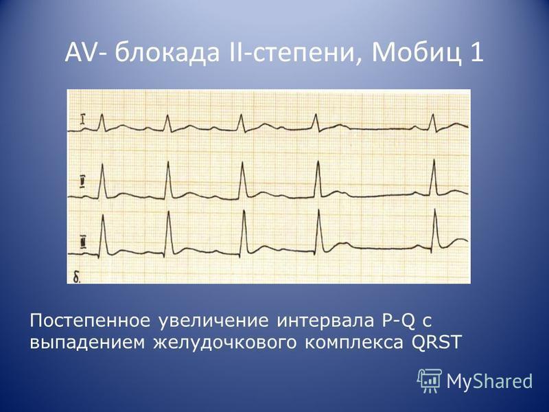 AV- блокада II-степени, Мобиц 1 Постепенное увеличение интервала P-Q c выпадением желудочкового комплекса QRST