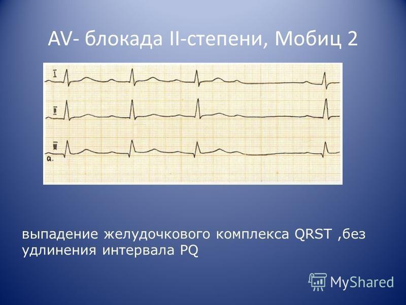 AV- блокада II-степени, Мобиц 2 выпадение желудочкового комплекса QRST,без удлинения интервала PQ