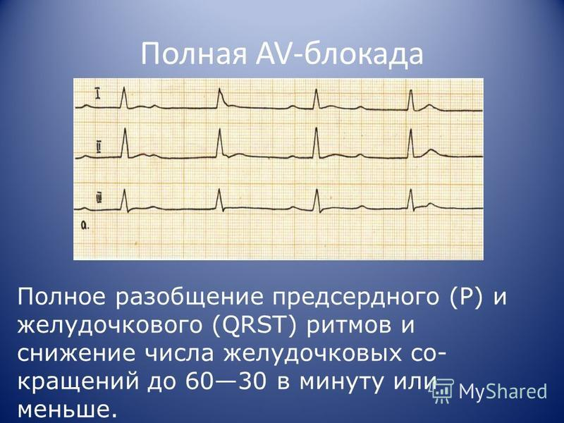 Полная AV-блокада Полное разобщение предсердного (Р) и желудочкового (QRST) ритмов и снижение числа желудочковых со кращений до 6030 в минуту или меньше.