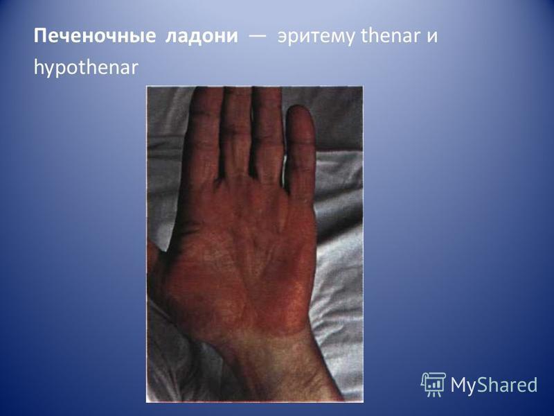 Печеночные ладони эритему thenar и hypothenar
