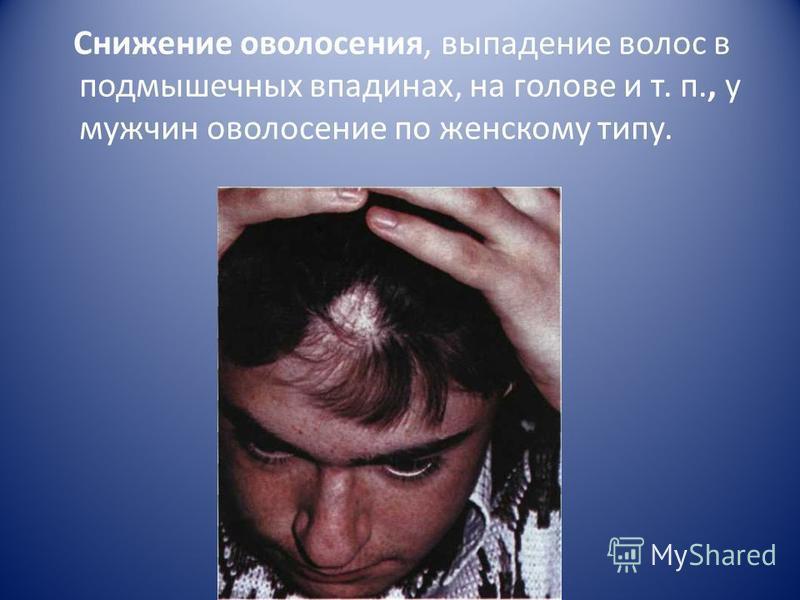 Снижение оволосения, выпадение волос в подмышечных впадинах, на голове и т. п., у мужчин оволосение по женскому типу.