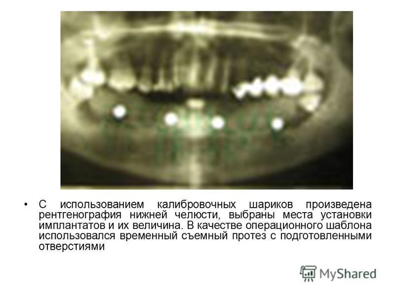 С использованием калибровочных шариков произведена рентгенография нижней челюсти, выбраны места установки имплантатов и их величина. В качестве операционного шаблона использовался временный съемный протез с подготовленными отверстиями