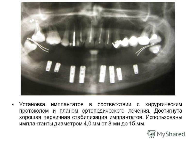 Установка имплантатов в соответствии с хирургическим протоколом и планом ортопедического лечения. Достигнута хорошая первичная стабилизация имплантатов. Использованы имплантанты диаметром 4,0 мм от 8-ми до 15 мм.