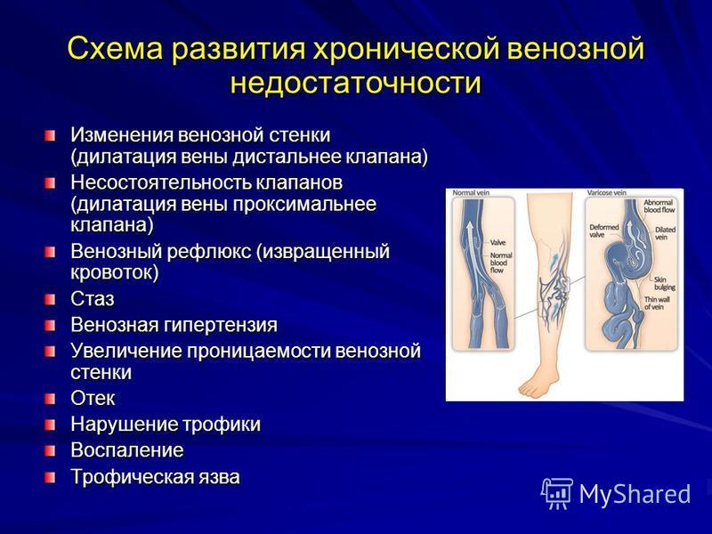 Схема развития хронической венозной недостаточности Изменения венозной стенки (дилатация вены дистальное клапана) Несостоятельность клапанов (дилатация вены проксимальное клапана) Венозный рефлюкс (извращенный кровоток) Стаз Венозная гипертензия Увел