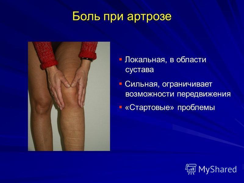 Боль при артрозе Локальная, в области сустава Сильная, ограничивает возможности передвижения «Стартовые» проблемы