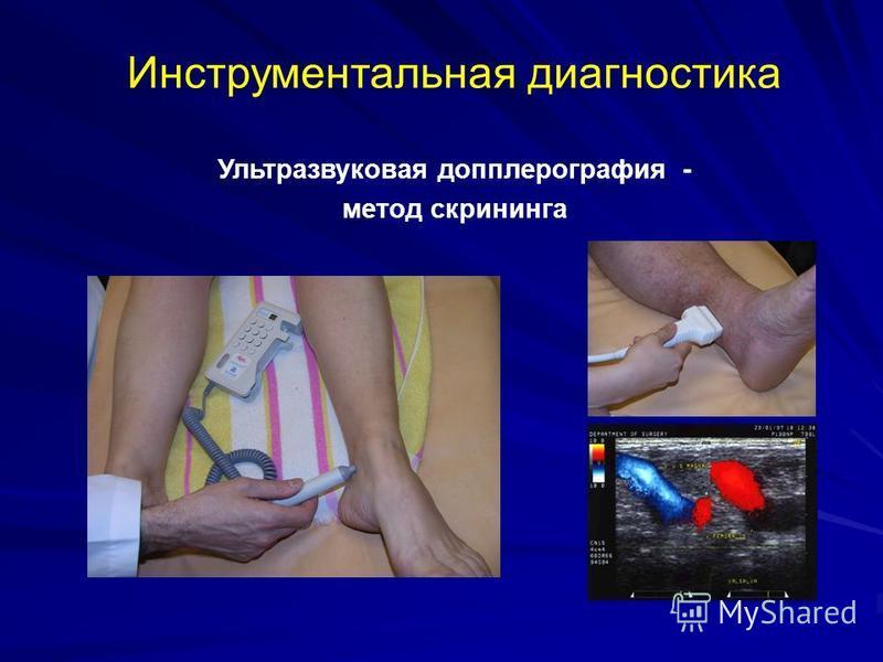 Ультразвуковая допплерография - метод скрининга Инструментальная диагностика