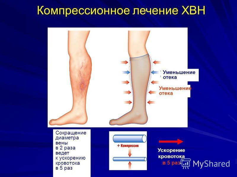 Компрессионное лечение ХВН Уменьшение отека Сокращение диаметра вены в 2 раза ведет к ускорению кровотока в 5 раз Ускорение кровотока в 5 раз Уменьшение отека