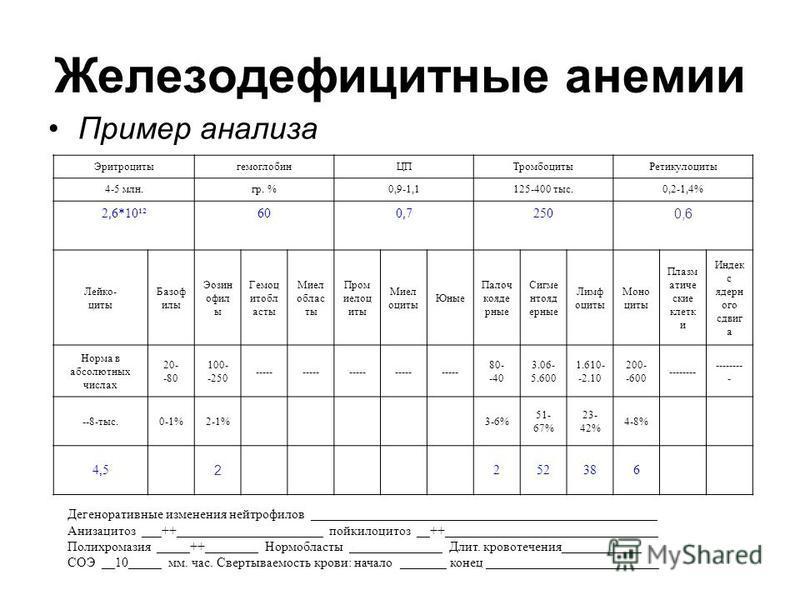 Железодефицитные анемии Пример анализа Эритроцитыгемоглобин ЦПТромбоцитыРетикулоциты 4-5 млн.гр. %0,9-1,1125-400 тыс.0,2-1,4% 2,6*10¹²600,7250 0,6 Лейко- циты Базоф илы Эозин офил ы Гемоц итобл асты Миел области Пром иелоц иты Миел оциты Юные Палоч к