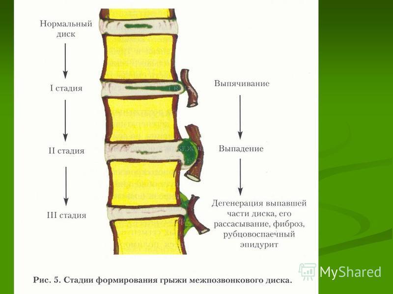 Динамика формирования остеохондроза I фаза – изменение пульпозного ядра (высыхает, фрагментируется, распадается на кусочки и травмирует фиброзное кольцо); (высыхает, фрагментируется, распадается на кусочки и травмирует фиброзное кольцо); II фаза – сн