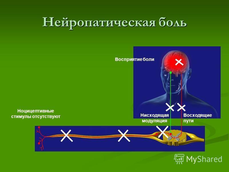 Ноцицептивная боль Примеры Воспаление Мышечный спазм Остеоартрит Боль при ожоге Характеристики боли Пульсирующая Колющая Сжимающая Режущая Ноцицептивная боль вызывается повреждением ткани и воспалением Лечение Эффективны анальгетиками, НПВС