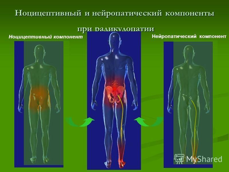 Пример смешанной боли: радикулопатия