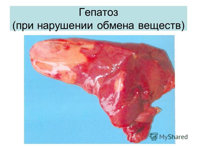 Гепатоз (при нарушении обмена веществ)