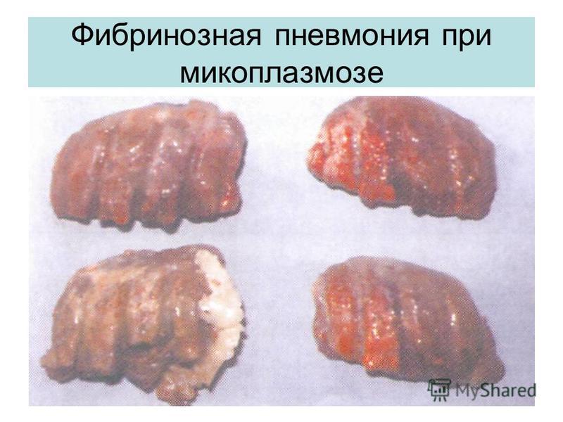 Фибринозная пневмония при микоплазмозе