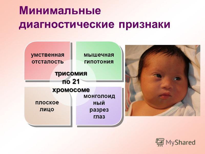 Минимальные диагностические признаки умственная отсталость мышечная гипотония плоское лицо монголоидный разрез глаз трисомия по 21 хромосоме