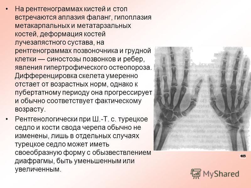 На рентгенограммах кистей и стоп встречаются аплазия фаланг, гипоплазия метакарпальных и метатарзальных костей, деформация костей лучезапястного сустава, на рентгенограммах позвоночника и грудной клетки синостозы позвонков и ребер, явления гипертрофи