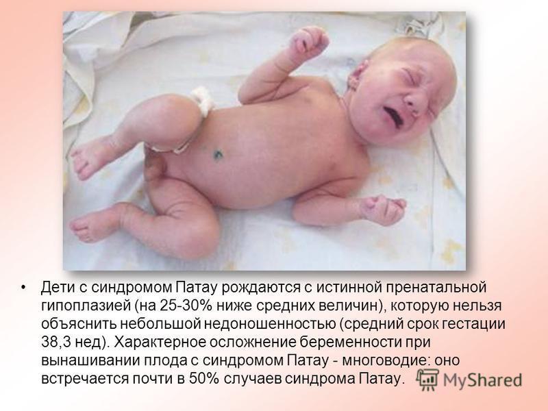 Дети с синдромом Патау рождаются с истинной пренатальной гипоплазией (на 25-30% ниже средних величин), которую нельзя объяснить небольшой недоношенностью (средний срок гестации 38,3 нед). Характерное осложнение беременности при вынашивании плода с си