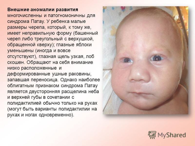 Внешние аномалии развития многочисленны и патогномоничны для синдрома Патау. У ребенка малые размеры черепа, который, к тому же, имеет неправильную форму (башенный череп либо треугольный с верхушкой, обращенной кверху); глазные яблоки уменьшены (иног