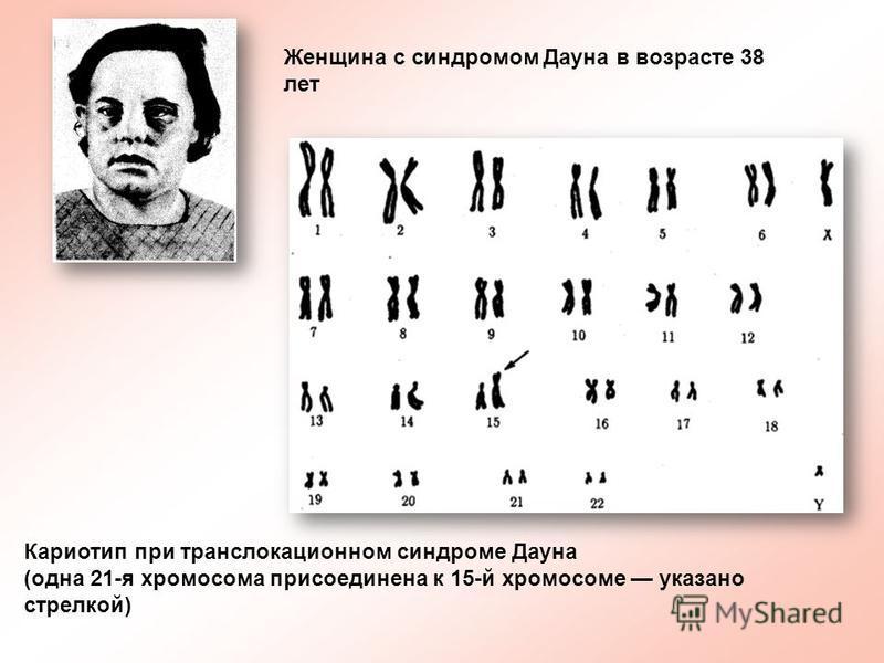 Кариотип при транслокационном синдроме Дауна (одна 21-я хромосома присоединена к 15-й хромосоме указано стрелкой) Женщина с синдромом Дауна в возрасте 38 лет