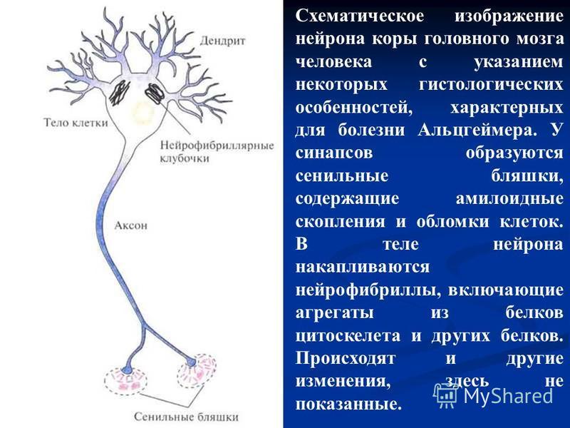 Схематическое изображение нейрона коры головного мозга человека с указанием некоторых гистологических особенностей, характерных для болезни Альцгеймера. У синапсов образуются сенильные бляшки, содержащие амилоидные скопления и обломки клеток. В теле