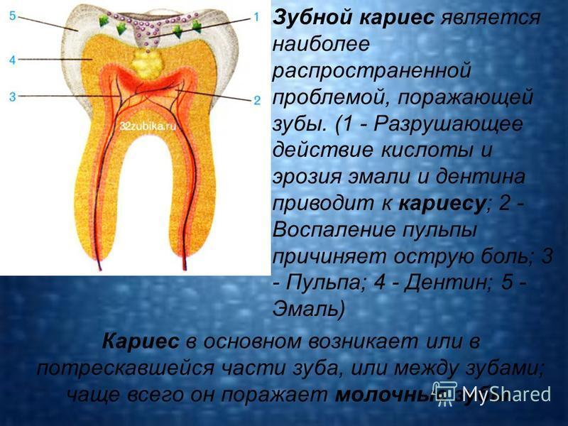 Кариес в основном возникает или в потрескавшейся части зуба, или между зубами; чаще всего он поражает молочные зубы. Зубной кариес является наиболее распространенной проблемой, поражающей зубы. (1 - Разрушающее действие кислоты и эрозия эмали и денти
