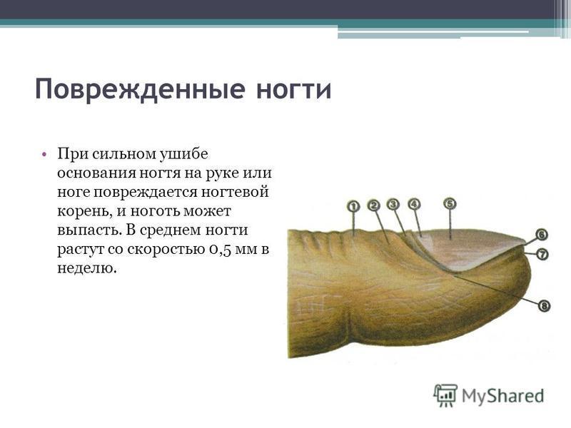 Поврежденные ногти При сильном ушибе основания ногтя на руке или ноге повреждается ногтевой корень, и ноготь может выпасть. В среднем ногти растут со скоростью 0,5 мм в неделю.
