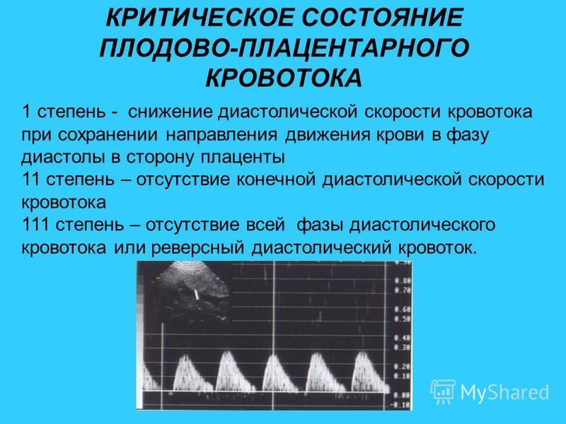 Нарушение кровотока 1 б степени при беременности у плода