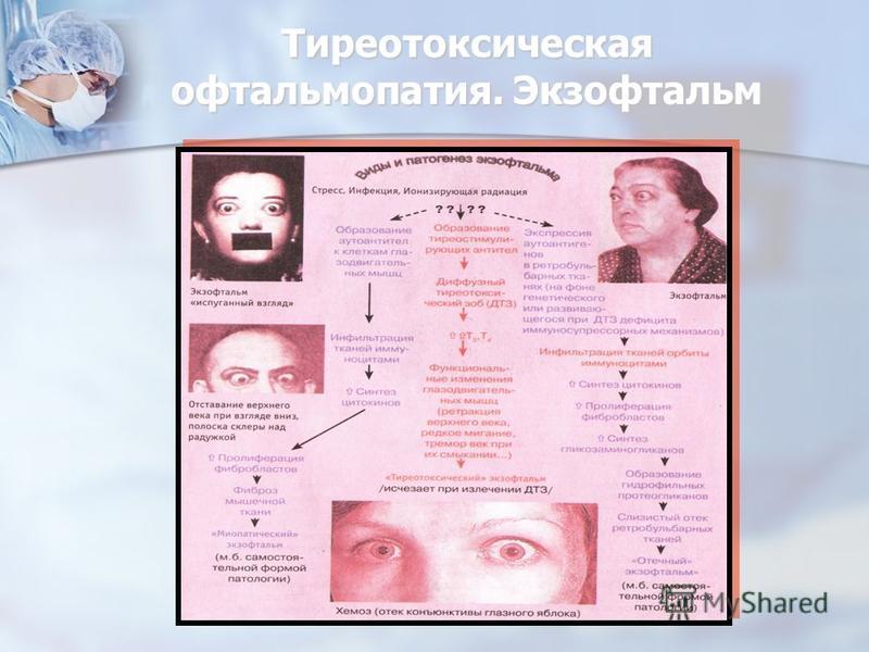 Тиреотоксическая офтальмопатия. Экзофтальм