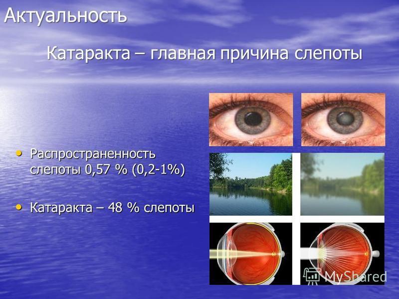 Актуальность Распространенность слепоты 0,57 % (0,2-1%) Распространенность слепоты 0,57 % (0,2-1%) Катаракта – 48 % слепоты Катаракта – 48 % слепоты Катаракта – главная причина слепоты