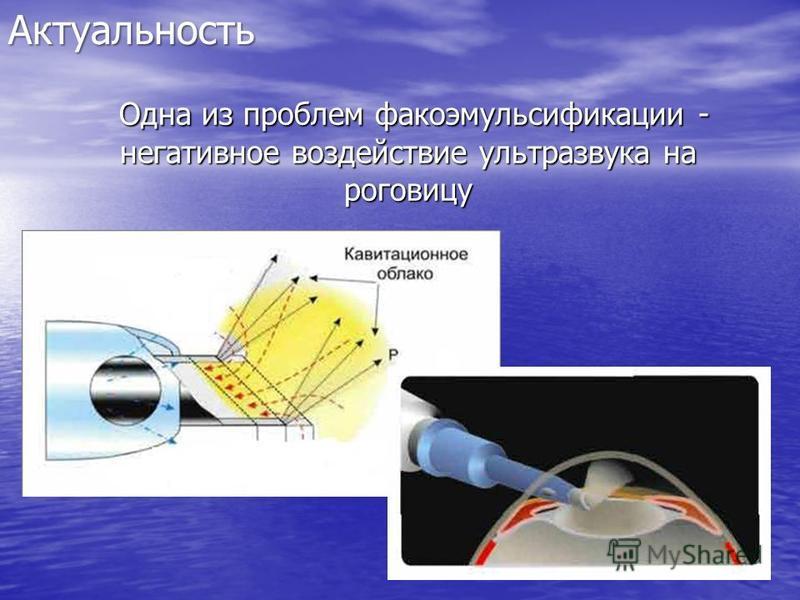 Одна из проблем факоэмульсификации - негативное воздействие ультразвука на роговицу Одна из проблем факоэмульсификации - негативное воздействие ультразвука на роговицу Актуальность