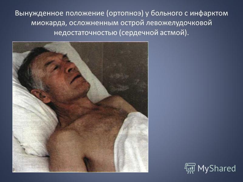 Вынужденное положение (ортопноэ) у больного с инфарктом миокарда, осложненным острой левожелудочковой недостаточностью (сердечной астмой).