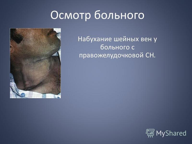 Осмотр больного Набухание шейных вен у больного с правожелудочковой СН.
