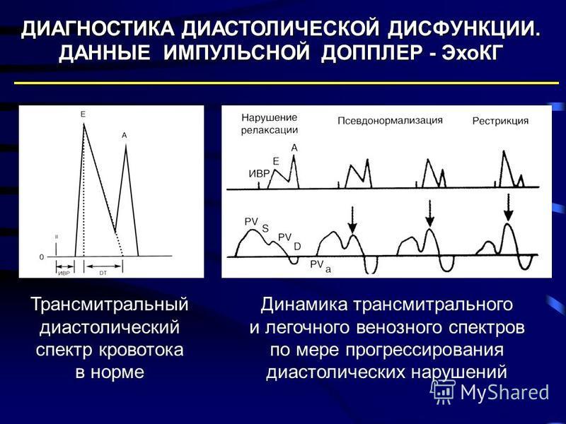 Трансмитральный диастолический спектр кровотока в норме Динамика трансмитрального и легочного венозного спектров по мере прогрессирования диастолических нарушений ДИАГНОСТИКА ДИАСТОЛИЧЕСКОЙ ДИСФУНКЦИИ. ДАННЫЕ ИМПУЛЬСНОЙ ДОППЛЕР - ЭхоКГ