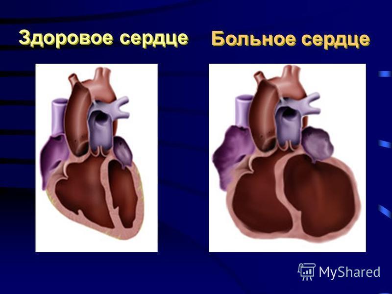 Здоровое сердце Больное сердце