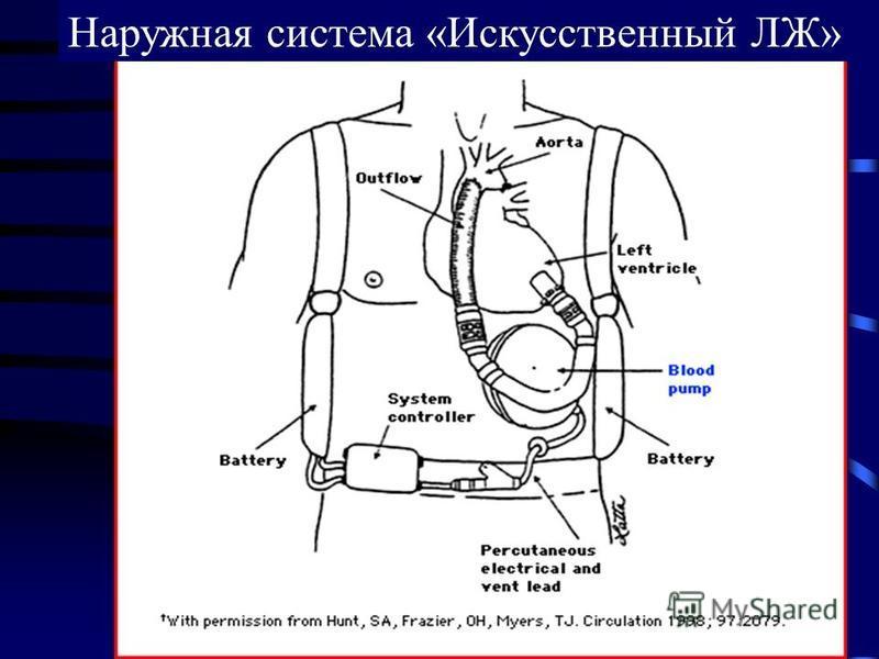 Наружная система «Искусственный ЛЖ»