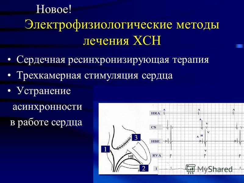 Электрофизиологические методы лечения ХСН Сердечная ресинхронизирующая терапия Трехкамерная стимуляция сердца Устранение асинхронности в работе сердца Новое! 1 2 3