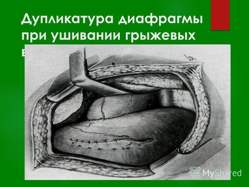 Дупликатура диафрагмы при ушивании грыжевых ворот