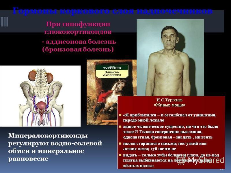 При гипофункции глюкокортикоидов - аддисонова болезнь (бронзовая болезнь) 55 Гормоны коркового слоя надпочечников Минералокортикоиды регулируют водно-солевой обмен и минеральное равновесие