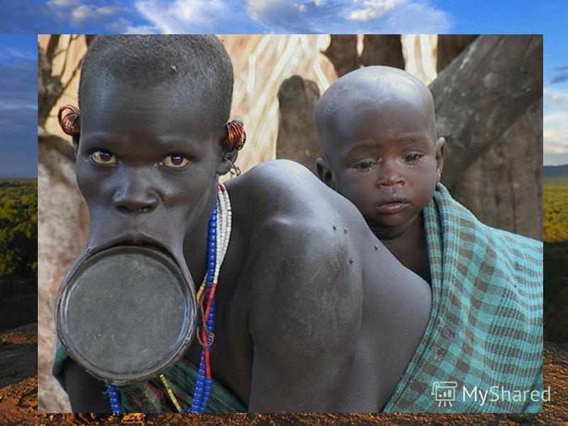 К промежуточной расе некоторые специалисты относят эфиопов. Они отличаются более светлой, но с красноватым оттенком окраской кожи. По своему внешнему виду эфиопы ближе к южной ветви европеоидной расы. Малагасийцы (жители Мадагаскара) произошли от сме