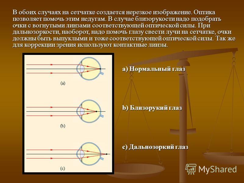 a) Нормальный глаз b) Близорукий глаз c) Дальнозоркий глаз В обоих случаях на сетчатке создается нерезкое изображение. Оптика позволяет помочь этим недугам. В случае близорукости надо подобрать очки с вогнутыми линзами соответствующей оптической силы