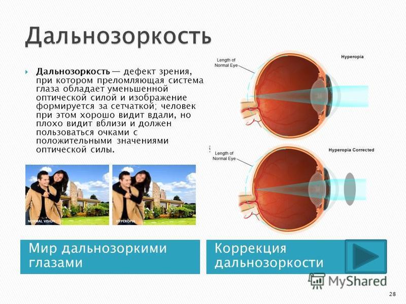 Мир дальнозоркими глазами Коррекция дальнозоркости Дальнозоркость дефект зрения, при котором преломляющая система глаза обладает уменьшенной оптической силой и изображение формируется за сетчаткой; человек при этом хорошо видит вдали, но плохо видит