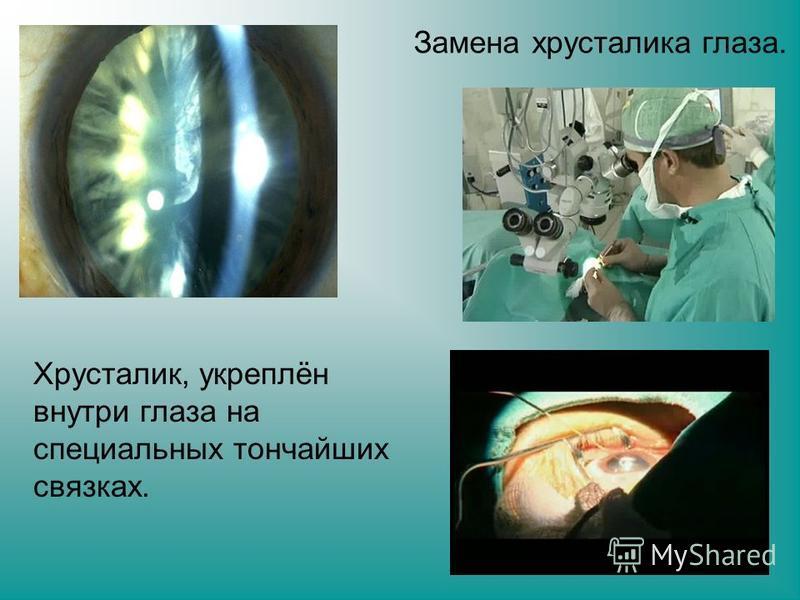 Хрусталик, укреплён внутри глаза на специальных тончайших связках. Замена хрусталика глаза.