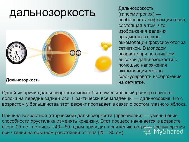 дальнозоркость Дальнозоркость (гиперметропия) особенность рефракции глаза, состоящая в том, что изображения далеких предметов в покое аккомодации фокусируются за сетчаткой. В молодом возрасте при не слишком высокой дальнозоркости с помощью напряжения