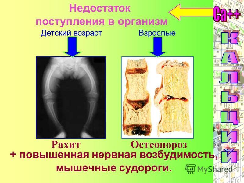 Недостаток поступления в организм Детский возраст Взрослые Рахит Остеопороз + повышенная нервная возбудимость, мышечные судороги.
