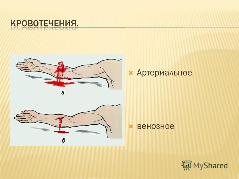 Артериальное венозное