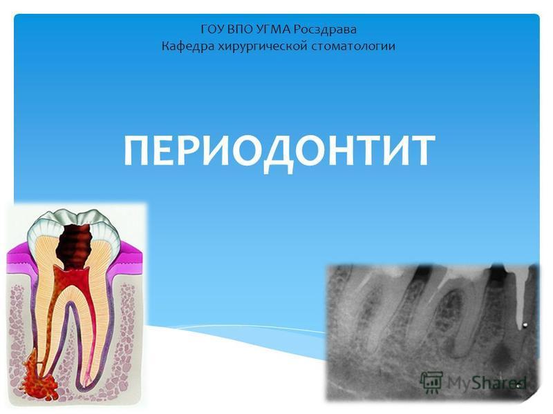 ПЕРИОДОНТИТ ГОУ ВПО УГМА Росздрава Кафедра хирургической стоматологии